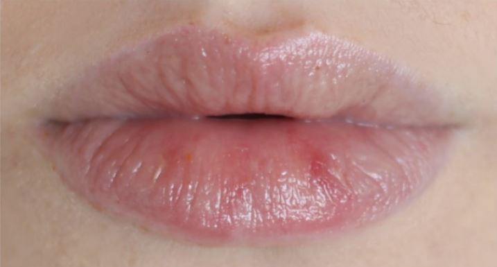 How to have a stunning lips