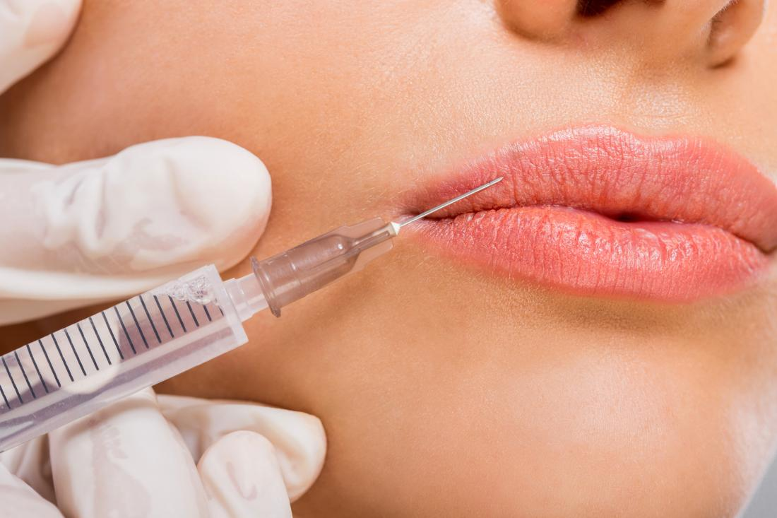 Peels, fillers, grafts, and laser treatment